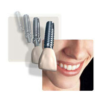 dental_implants_1751